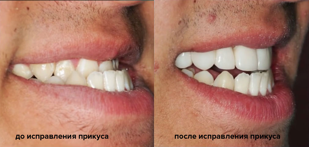 исправление прикуса стоматология москва