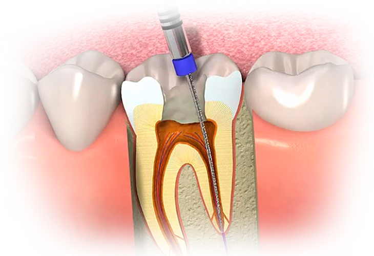 Лечение глубокого кариеса по доступным ценам | Стоматологический комплекс «ПрезиДент»