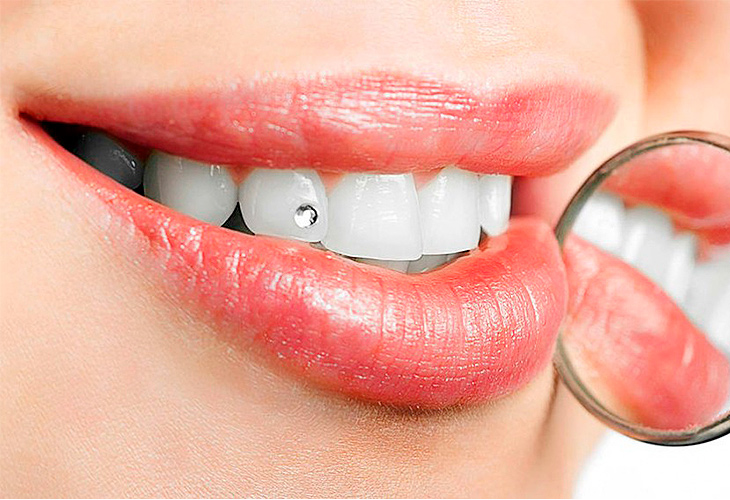 вас намечается стразы на зубах фото просил известных режиссеров