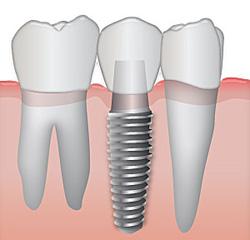 Удаление зубов без боли и слез