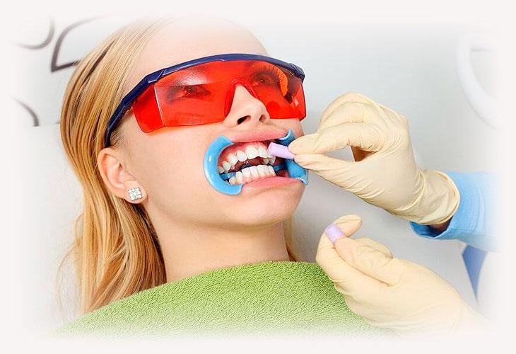 Как проводится отбеливание зубов в стоматологии