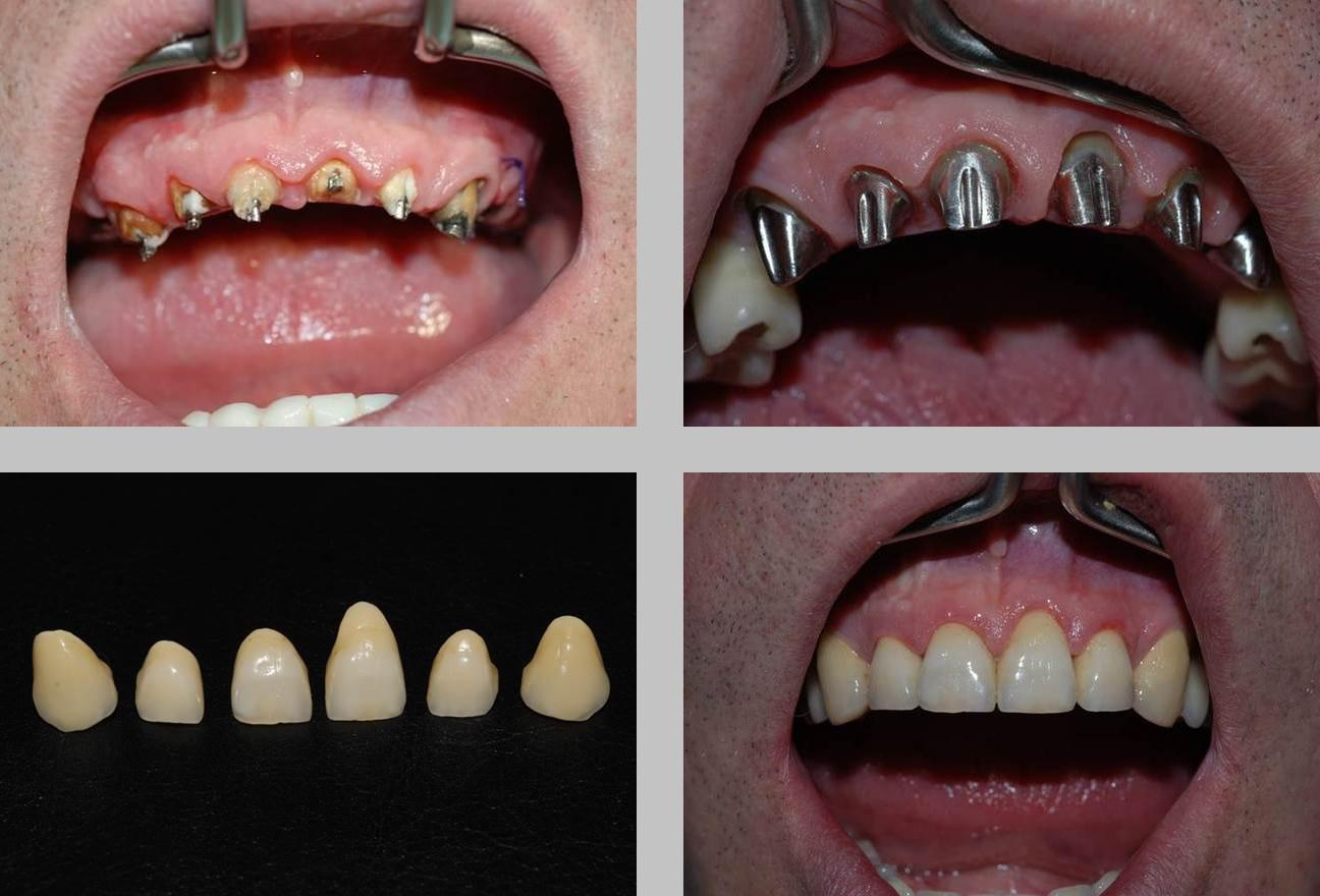 Нет зуба что лучше установить