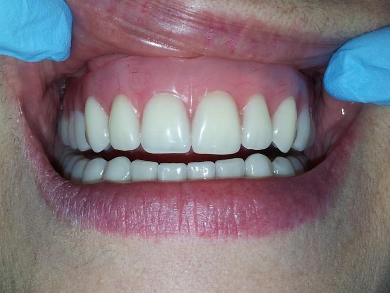 В верхней челюсти нет полностью зубов 60