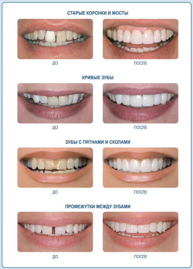 подходят ли виниры на полное отсутствие зубов