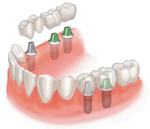 Стоматология Хелсидент - Если сломался зубной протез